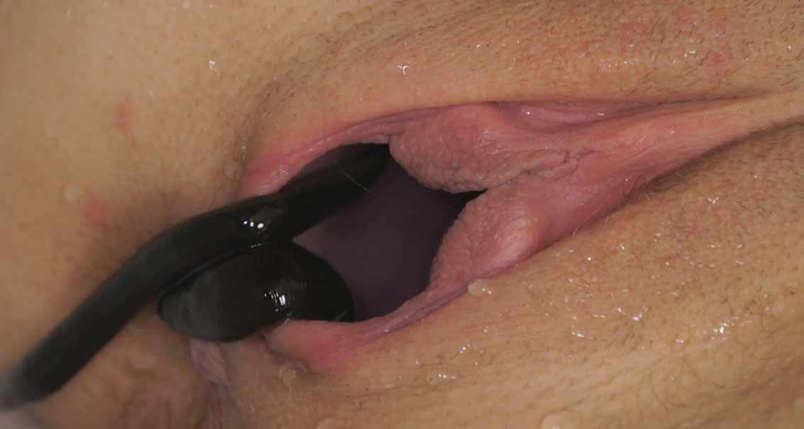 snake bite in pussy - Image 4 FAP