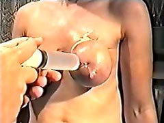 Saline injections in the tits