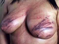 Breasts abuse