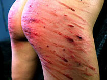 Very hard caning
