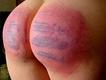 Spanking till bruises