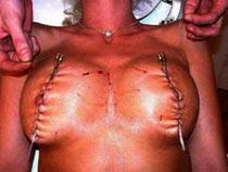 Sewn tortured tits