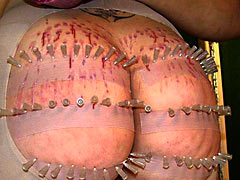 Hundred needles in ass