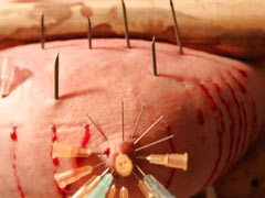 Needles through flesh