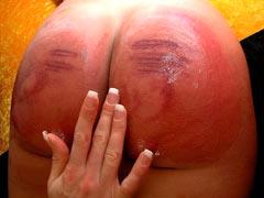 Tender spanked skin