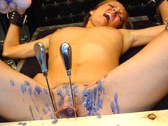 Nailing of labia