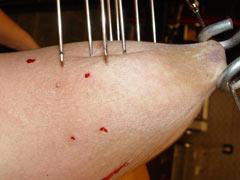 Needles in flesh