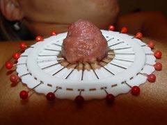 Needles in nipples