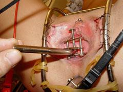 Female urethral play