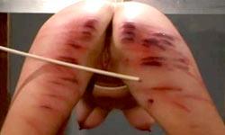 Torture of inmates