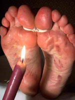 Bastinado with hot wax