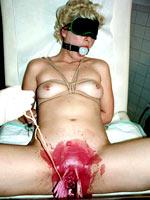 Medical examination torture