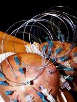 Cruel needleplay for breast