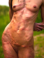 Marks and bruises after whipping