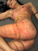 Pain from rubber band