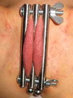Torment of sexual organs