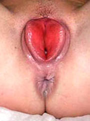 Pics of the tortured vaginas