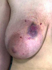 Some painful torture of tits