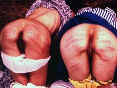 Bruised asses